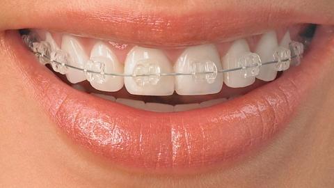 ขอบคุณคลีนิครักฟันนะคะ #ทำฟัน #จัดฟัน #คลีนิครักฟัน #สุพรรณบุรี