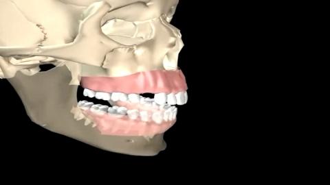 ขั้นตอนการใส่รากฟันเทียม #ทำฟัน #จัดฟัน #คลีนิครักฟัน #สุพรรณบุรี