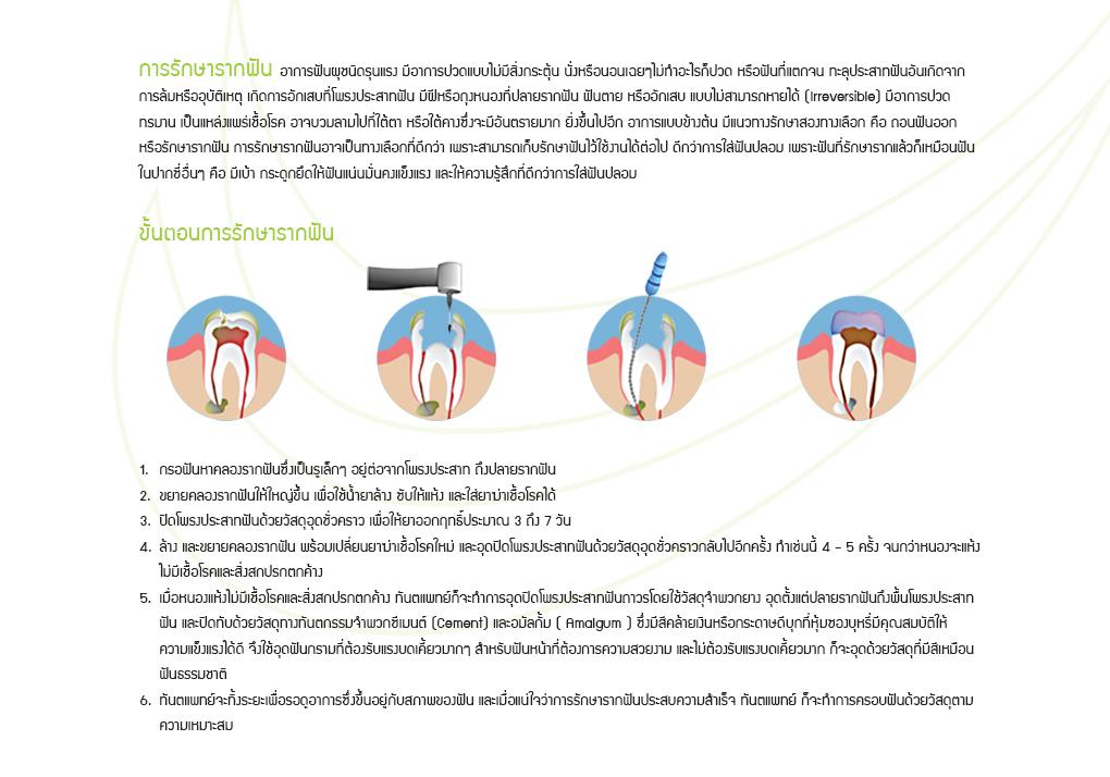 บริการรักษารากฟัน